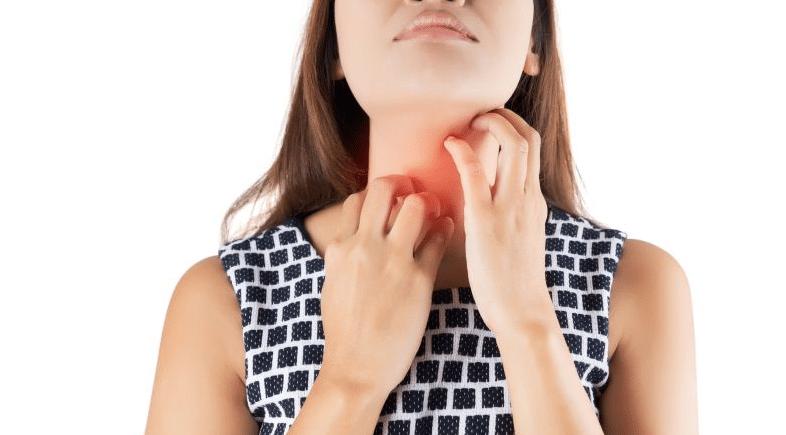 prurito alla gola