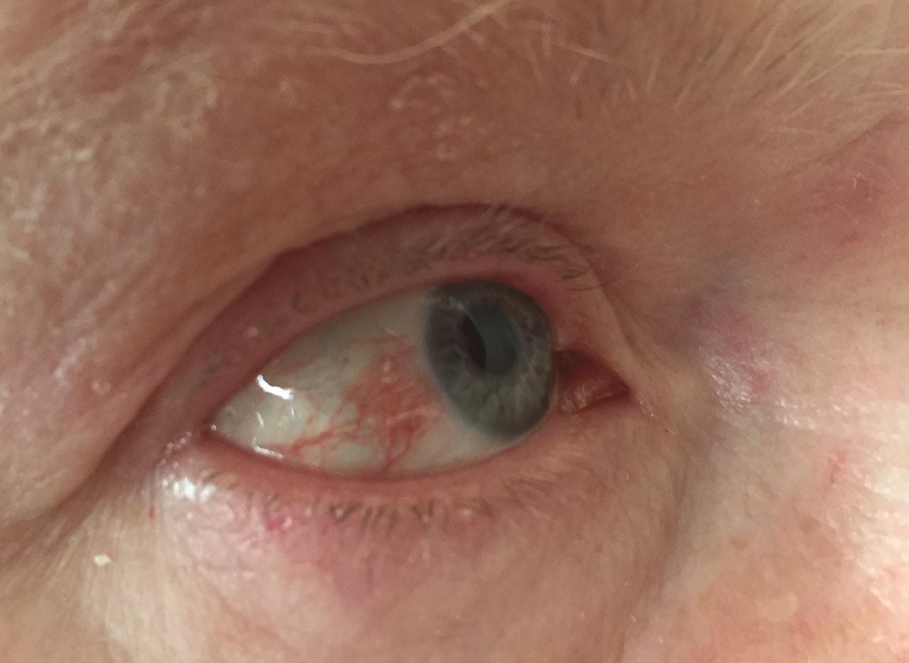 herpes, Quando l'herpes infetta l'occhio